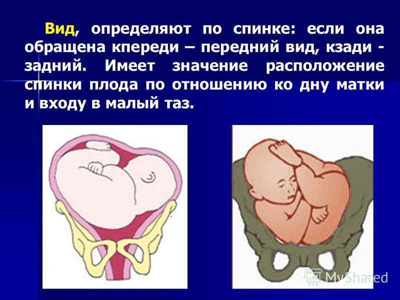 Вид, определяют по спинке: если она обращена кпереди – передний вид, кзади - задний. Имеет значение расположение спинки плода по отношению ко дну матки и входу в малый таз.