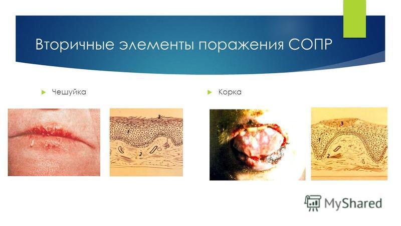 Вторичные элементы поражения СОПР Чешуйка Корка