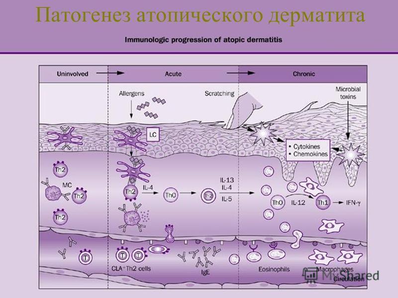 От чего болезнь нейродермит
