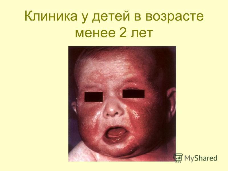 Клиника у детей в возрасте менее 2 лет
