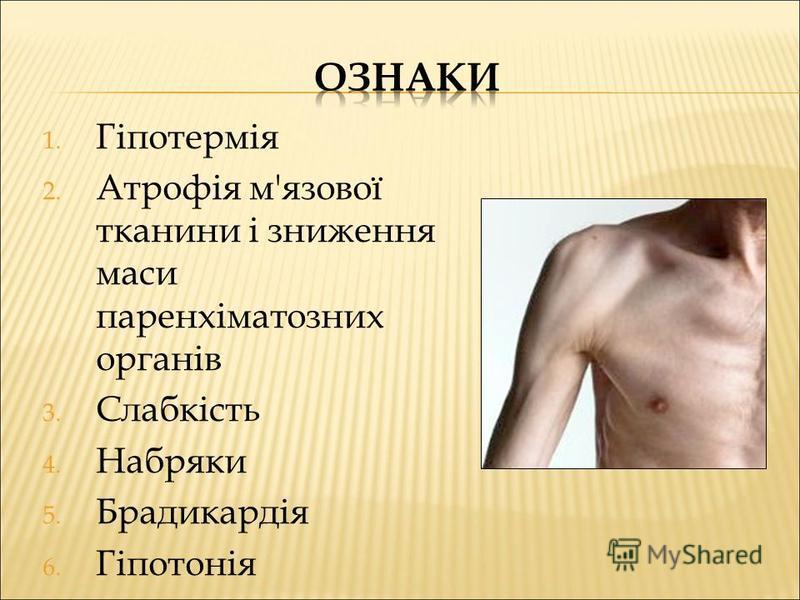 1. Гіпотермія 2. Атрофія м'язової тканини і зниження маси паренхіматозних органів 3. Слабкість 4. Набряки 5. Брадикардія 6. Гіпотонія