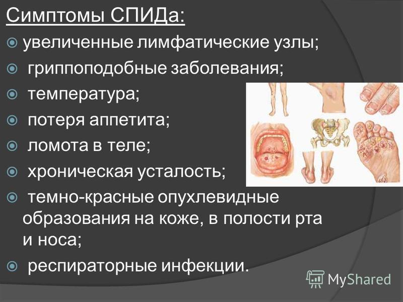 Симптомы СПИДа: увеличенные лимфатические узлы; гриппоподобные заболевания; температура; потеря аппетита; ломота в теле; хроническая усталость; темно-красные опухолевидные образования на коже, в полости рта и носа; респираторные инфекции.