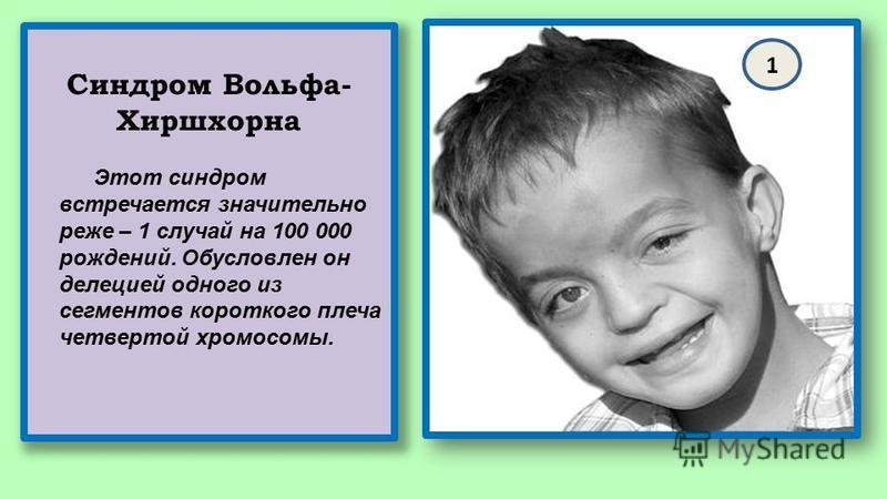 Синдром Вольфа- Хиршхорна Этот синдром встречается значительно реже – 1 случай на 100 000 рождений. Обусловлен он делецией одного из сегментов короткого плеча четвертой хромосомы. 1