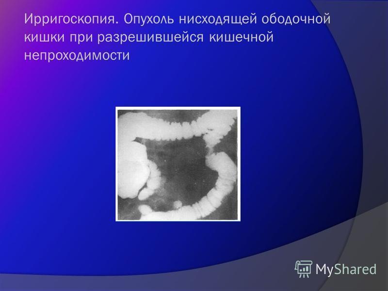 Ирригоскопия. Опухоль нисходящей ободочной кишки при разрешившейся кишечной непроходимости