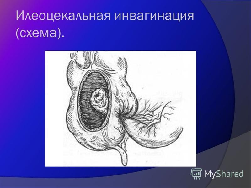 Илеоцекальная инвагинация (схема).