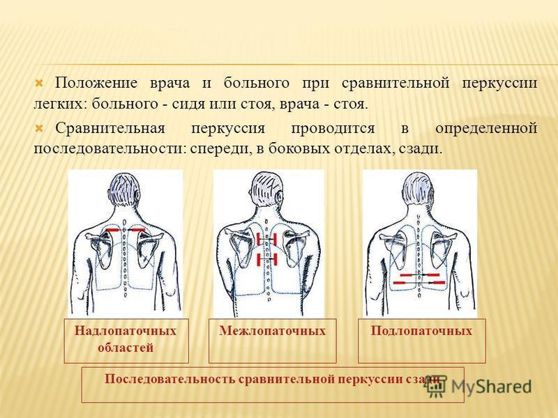 Положение врача и больного при сравнительной перкуссии легких: больного - сидя или стоя, врача - стоя. Сравнительная перкуссия проводится в определенной последовательности: спереди, в боковых отделах, сзади. Надлопаточных областей Межлопаточных Подло