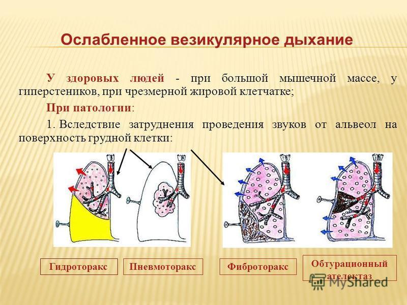Ослабленное везикулярное дыхание У здоровых людей - при большой мышечной массе, у гиперстеников, при чрезмерной жировой клетчатке; При патологии: 1. Вследствие затруднения проведения звуков от альвеол на поверхность грудной клетки: Гидроторакс Пневмо