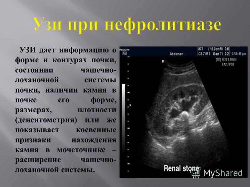 Камень в правой почке у беременной 58