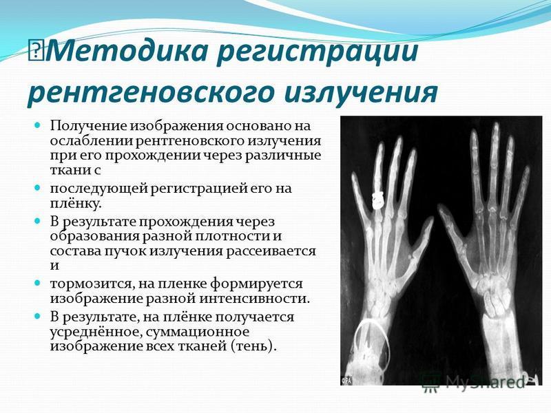 Методика регистрации рентгеновского излучения Получение изображения основано на ослаблении рентгеновского излучения при его прохождении через различные ткани с последующей регистрацией его на плёнку. В результате прохождения через образования разной