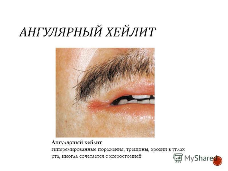 Ангулярный хейлит гиперемированные поражения, трещины, эрозии в углах рта, иногда сочетается с ксеростомией