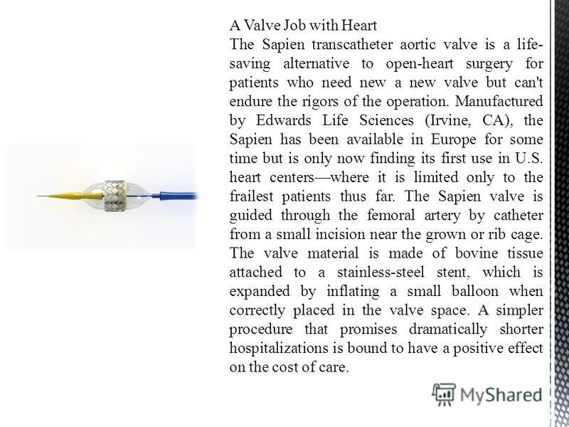 A Valve Job with Heart The Sapien transcatheter aortic valve is a life- saving alternative to open-heart surgery for patients who need new a new valve but can't endure the rigors of the operation. Manufactured by Edwards Life Sciences (Irvine, CA), t