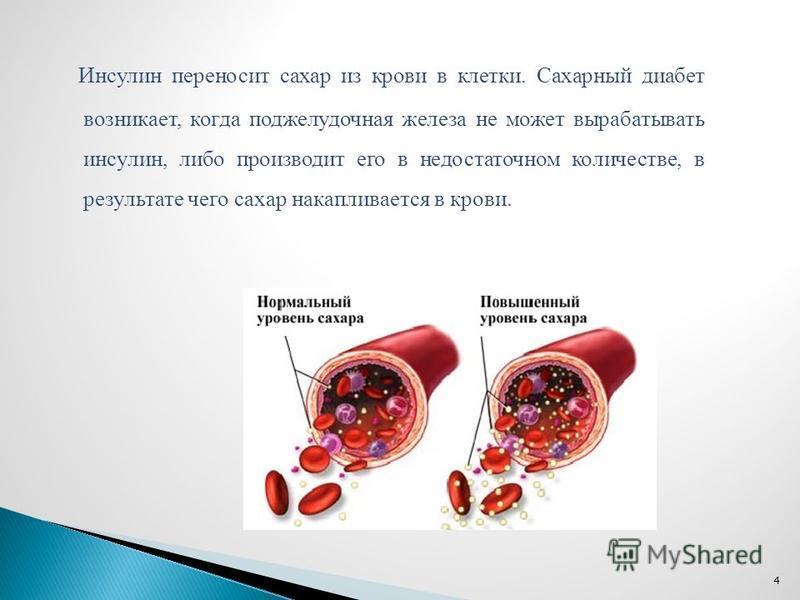 Инсулин переносит сахар из крови в клетки. Сахарный диабет возникает, когда поджелудочная железа не может вырабатывать инсулин, либо производит его в недостаточном количестве, в результате чего сахар накапливается в крови. 4