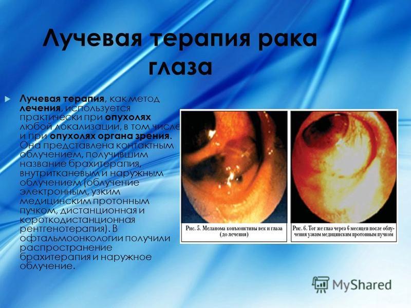 Лучевая терапия рака глаза Лучевая терапия, как метод лечения, используется практически при опухолях любой локализации, в том числе и при опухолях органа зрения. Она представлена контактным облучением, получившим название брахитерапия, внутритканевым