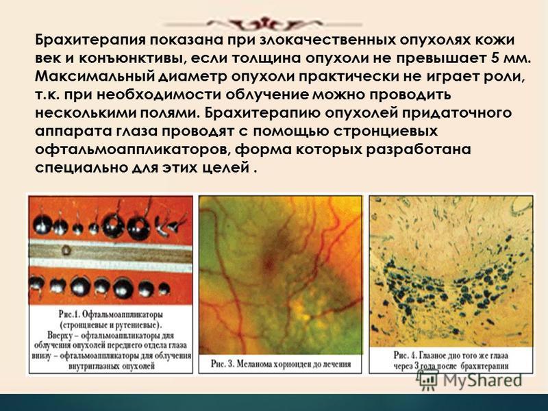 Брахитерапия показана при злокачественных опухолях кожи век и конъюнктивы, если толщина опухоли не превышает 5 мм. Максимальный диаметр опухоли практически не играет роли, т.к. при необходимости облучение можно проводить несколькими полями. Брахитера