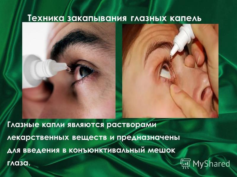 Техника закапывания глазных капель Глазные капли являются растворами лекарственных веществ и предназначены для введения в конъюнктивальный мешок глаза. Техника закапывания глазных капель