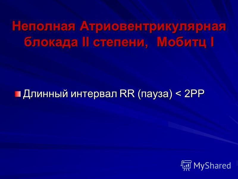 Неполная Атриовентрикулярная блокада II степени, Мобитц I Длинный интервал RR (пауза) < 2РР