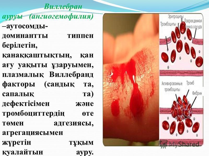 Виллебран ауруы (ангиогемофилия) –аутосомды- доминантты типпен берілетін, қанаққаштықтың, қан ағу уақыты ұзаруымен, плазмалық Виллебранд факторы (сандық та, сапалық та) дефектісімен және тромбоциттердің өте төмен адгезиясы, агрегациясымен жүретін тұқ