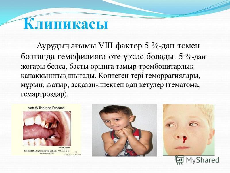 Клиникасы Ауруды ң а ғ ымы VIII фактор 5 %-дан төмен болғанда гемофилияға өте ұқсас болады. 5 %-дан жоғары болса, басты орынға тамыр-тромбоцитарлық қанаққыштық шығады. Көптеген тері геморрагиялары, мұрын, жатыр, асқазан-ішектен қан кетулер (гематома,