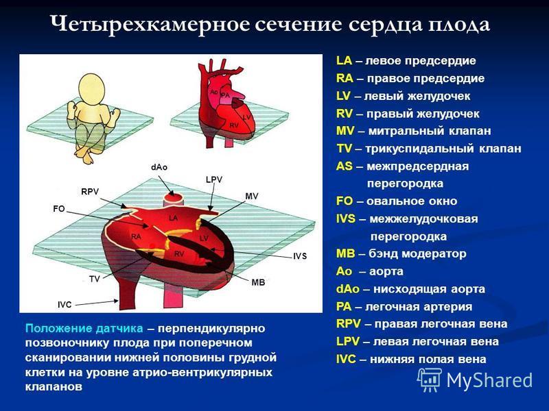 Четырехкамерное сечение сердца плода dAo LA – левое предсердие RA – правое предсердие LV – левый желудочек RV – правый желудочек MV – митральный клапан TV – трикуспидальный клапан AS – межпредсердная перегородка FO – овальное окно IVS – межжелудочков