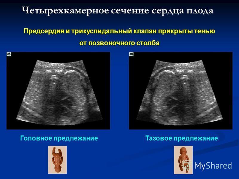 Четырехкамерное сечение сердца плода Предсердия и трикуспидальный клапан прикрыты тенью от позвоночного столба Головное предлежание Тазовое предлежание