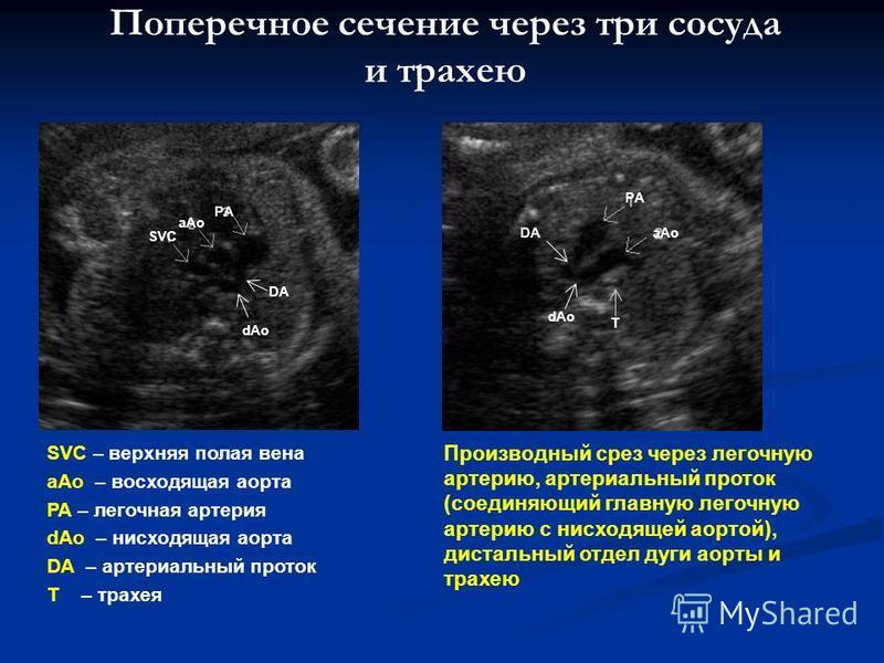 Поперечное сечение через три сосуда и трахею SVC – верхняя полая вена aAo – восходящая аорта PA – легочная артерия dAo – нисходящая аорта DA – артериальный проток T – трахея Производный срез через легочную артерию, артериальный проток (соединяющий гл