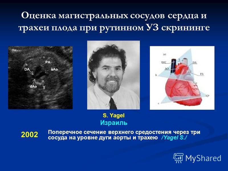Оценка магистральных сосудов сердца и трахеи плода при рутинном УЗ скрининге 2002 Поперечное сечение верхнего средостения через три сосуда на уровне дуги аорты и трахею /Yagel S./ S. Yagel Израиль PA aAo dAo DA T