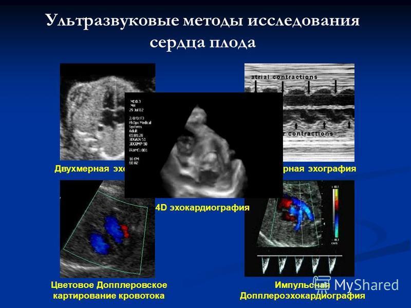 Ультразвуковые методы исследования сердца плода Двухмерная эхография Одномерная эхография Цветовое Допплеровское картирование кровотока Импульсная Допплероэхокардиографиия 4D эхокардиографиия