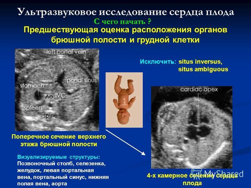 Ультразвуковое исследование сердца плода Предшествующая оценка расположения органов брюшной полости и грудной клетки С чего начать ? Визуализируемые структуры: Позвоночный столб, селезенка, желудок, левая портальная вена, портальный синус, нижняя пол