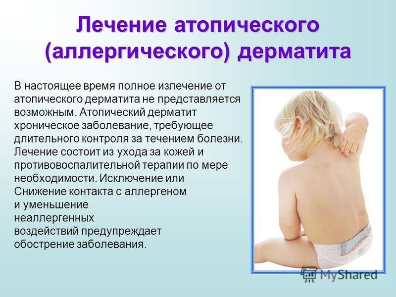 Мокнутия при атопическом дерматите