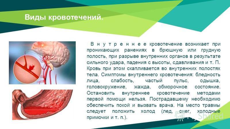 Виды кровотечений. В н у т р е н н е е кровотечение возникает при проникающих ранениях в брюшную или грудную полость, при разрыве внутренних органов в результате сильного удара, падения с высоты, сдавливания и т. П. Кровь при этом скапливается во вну