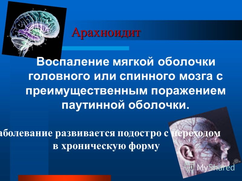 Арахноидит Воспаление мягкой оболочки головного или спинного мозга с преимущественным поражением паутинной оболочки. Заболевание развивается подостро с переходом в хроническую форму