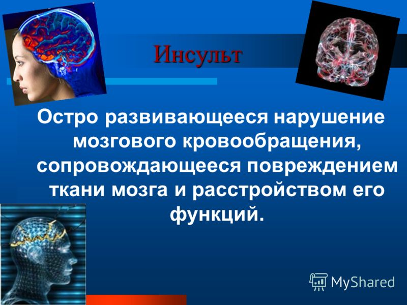 Инсульт Инсульт Остро развивающееся нарушение мозгового кровообращения, сопровождающееся повреждением ткани мозга и расстройством его функций.