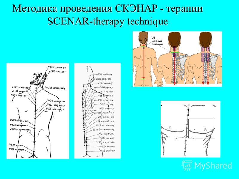Методика проведения СКЭНАР - терапии SCENAR-therapy technique