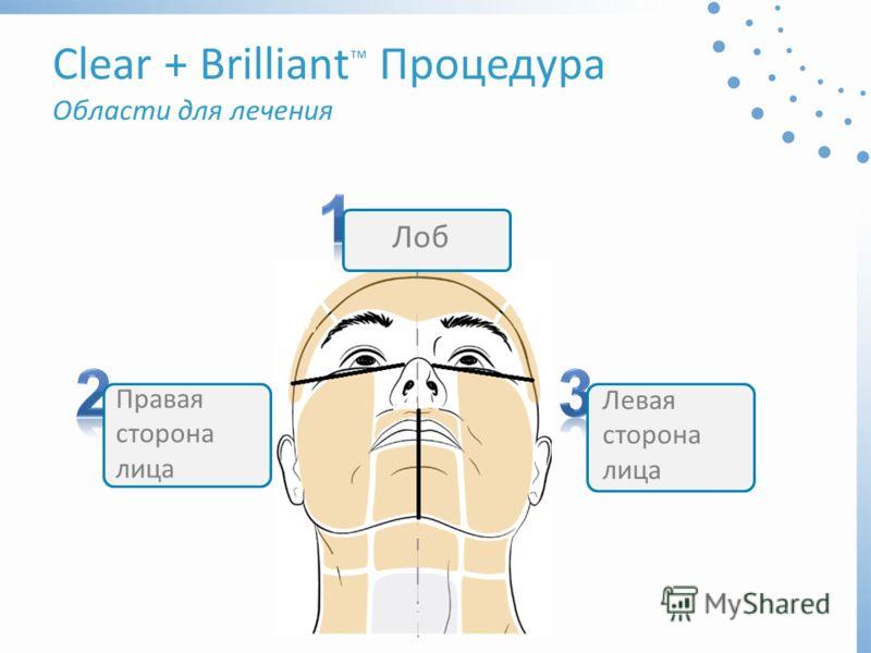 Clear + Brilliant Процедура Области для лечения Лоб Правая сторона лица Левая сторона лица
