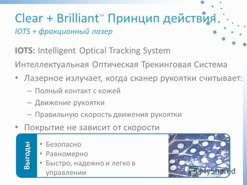 IOTS: Intelligent Optical Tracking System Интеллектуальная Оптическая Трекинговая Система Лазерное излучает, когда сканер рукоятки считывает: – Полный контакт с кожей – Движение рукоятки – Правильную скорость движения рукоятки Покрытие не зависит от