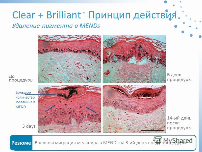 До процедуры В день процедуры 3 days 14-ый день после процедуры Большое количество меланина в MEND Clear + Brilliant Принцип действия Удаление пигмента в MENDs Внешняя миграция меланина в MENDs на 3-ий день после процедуры