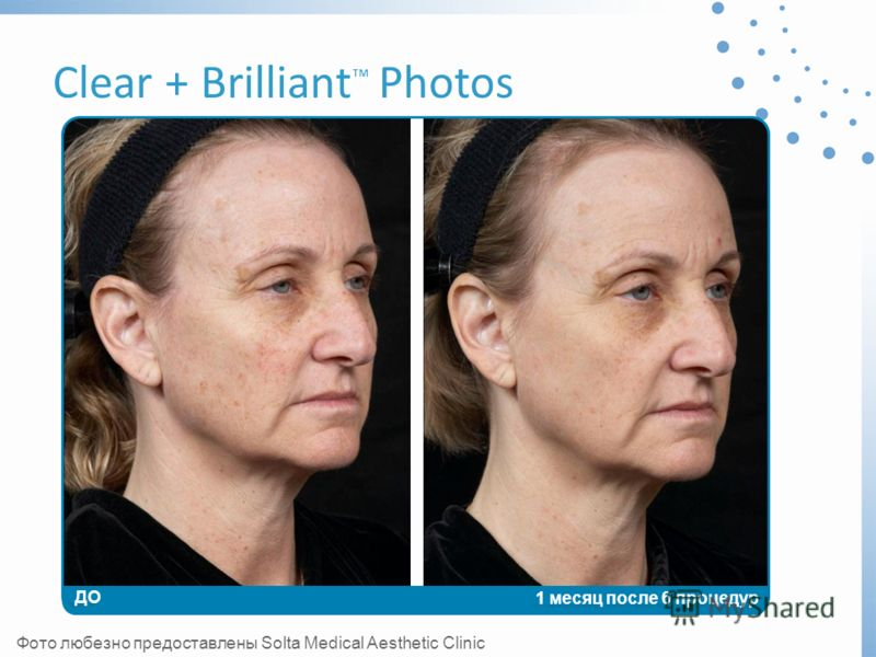 Clear + Brilliant Photos ДО 1 месяц после 6 процедур Фото любезно предоставлены Solta Medical Aesthetic Clinic