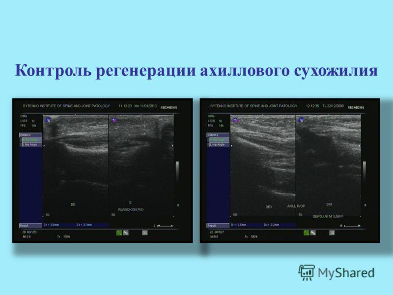 Контроль регенерации ахиллового сухожилия