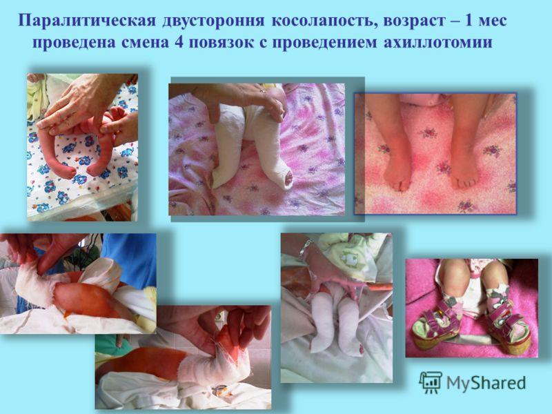 Паралитическая двустороння косолапость, возраст – 1 мес проведена смена 4 повязок с проведением ахиллотомии