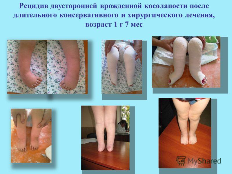 Рецидив двусторонней врожденной косолапости после длительного консервативного и хирургического лечения, возраст 1 г 7 мес