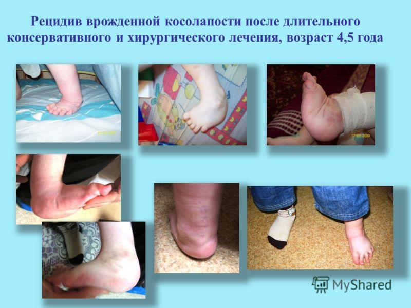 Рецидив врожденной косолапости после длительного консервативного и хирургического лечения, возраст 4,5 года