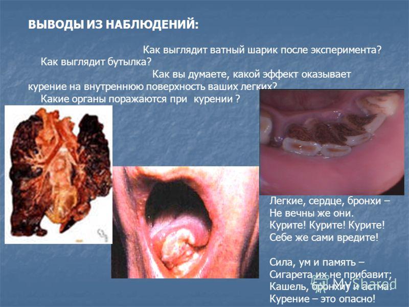 ВЫВОДЫ ИЗ НАБЛЮДЕНИЙ: Как выглядит ватный шарик после эксперимента? Как выглядит бутылка? Как вы думаете, какой эффект оказывает курение на внутреннюю поверхность ваших легких? Какие органы поражаются при курении ? Легкие, сердце, бронхи – Не вечны ж