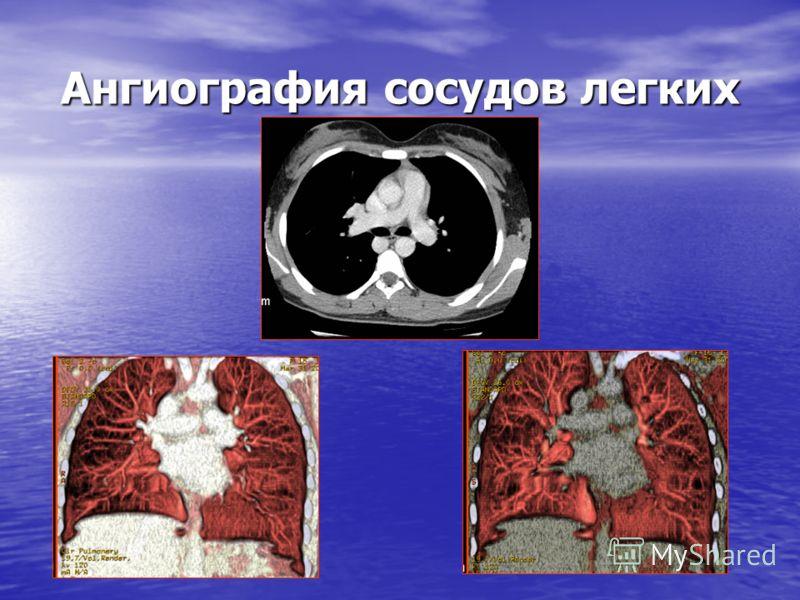 Ангиография сосудов легких