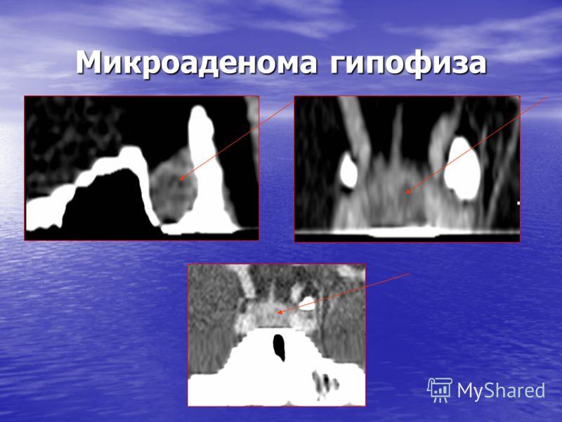 Микроаденома гипофиза
