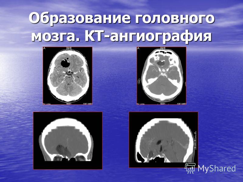 Образование головного мозга. КТ-ангиография