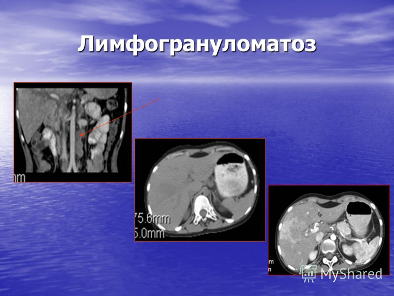 Лимфогрануломатоз