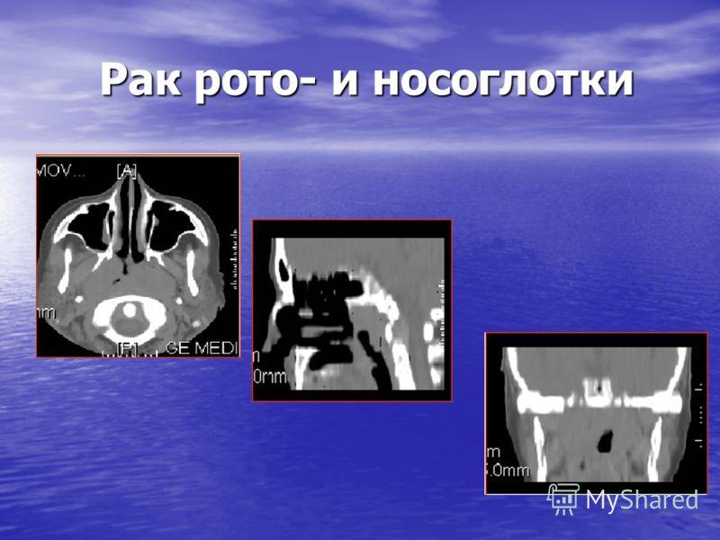 Рак рото- и носоглотки Рак рото- и носоглотки