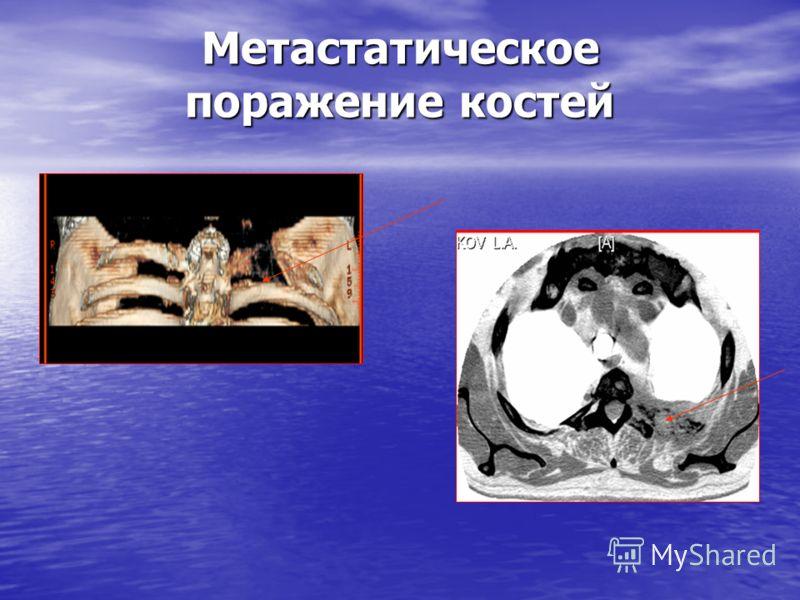 Метастатическое поражение костей