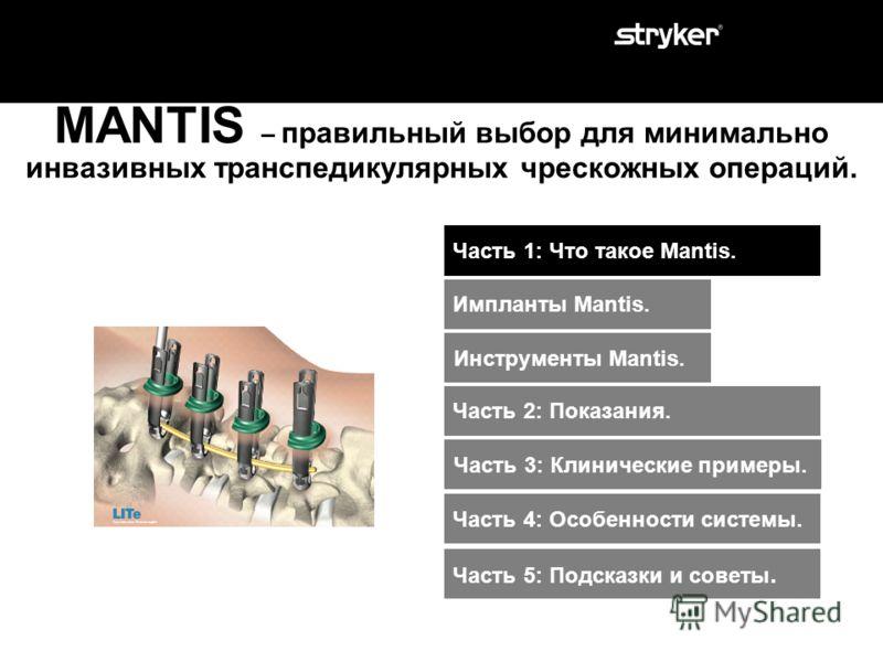 MANTIS – правильный выбор для минимально инвазивных транспедикулярных чрескожных операций. Часть 1: Что такое Mantis. Часть 3: Клинические примеры. Часть 2: Показания. Часть 4: Особенности системы. Часть 5: Подсказки и советы.