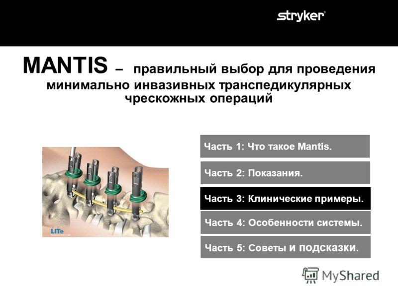 Показания к применению MANTIS : MANTIS является спинальной системой предназначенной для чрескожной транспедикулярной фиксации позвоночника (исключая шейный отдел) при : дегенеративных поражениях диска, спондилолистезе, травме (т.е. переломе или дисло